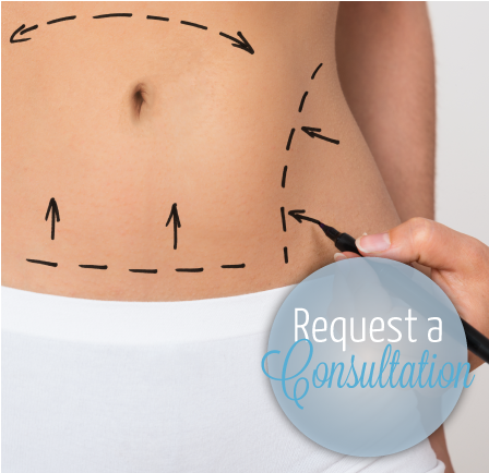 Tummy Tuck | Request a Consultation