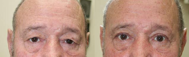 Niagara Plastic Surgery & Laser Centre | Blepharoplasty (Eye